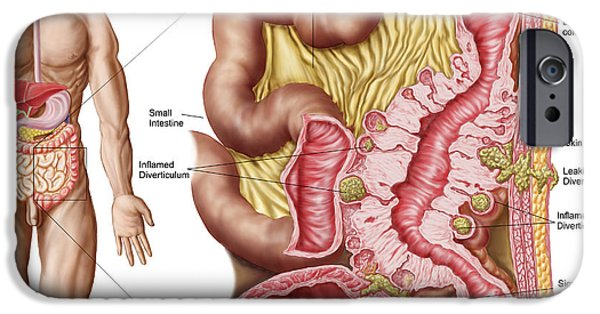 Sigmoid Colon iPhone Cases - Illustration Of Diverticulosis iPhone Case by Stocktrek Images