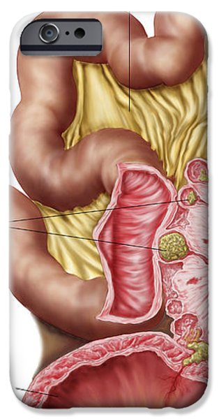 Illustration Of Diverticulosis iPhone Case by Stocktrek Images