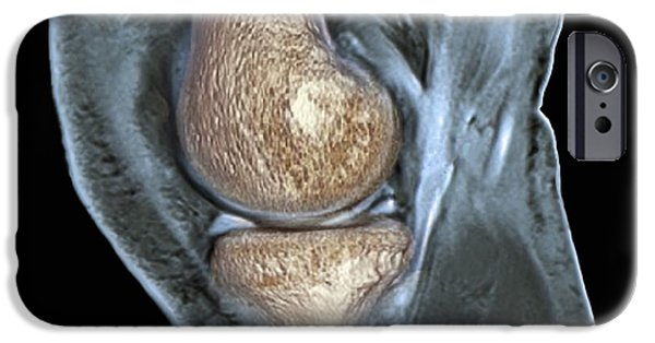 Torn iPhone Cases - Knee Injury, 3d Ct Scan iPhone Case by Zephyr