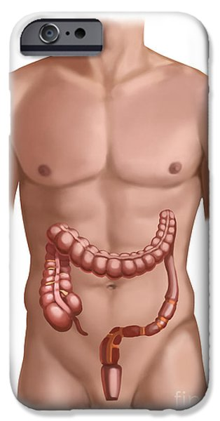 Sigmoid Colon iPhone Cases - Large Intestine iPhone Case by Spencer Sutton