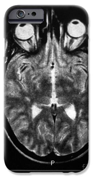 Diagnostic iPhone Cases - Multiple Sclerosis iPhone Case by Scott Camazine