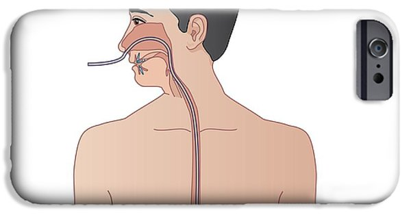 Disorder iPhone Cases - Nasogastric Tube, Artwork iPhone Case by Peter Gardiner