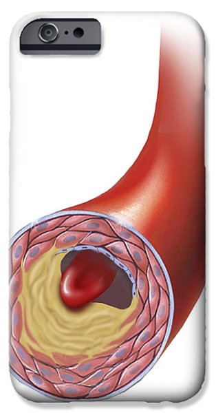 Disorder Digital iPhone Cases - Normal Artery Compared To Plaque iPhone Case by TriFocal Communications