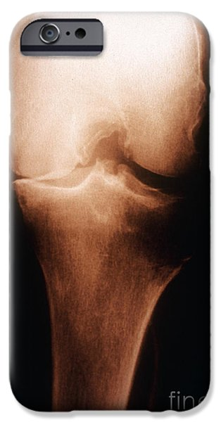 Disorder iPhone Cases - Osteoarthritis, X-ray iPhone Case by Scott Camazine