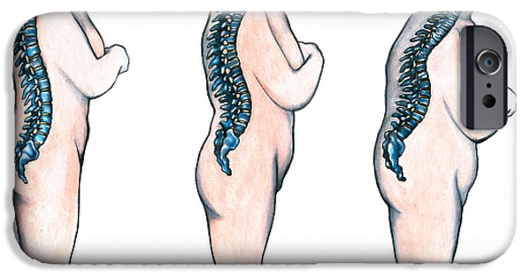 Abnormal iPhone Cases - Osteoporosis iPhone Case by Gwen Shockey