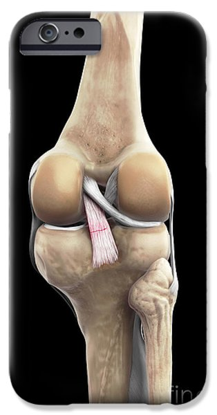 Torn iPhone Cases - Posterior Cruciate Ligament Injury iPhone Case by Science Picture Co