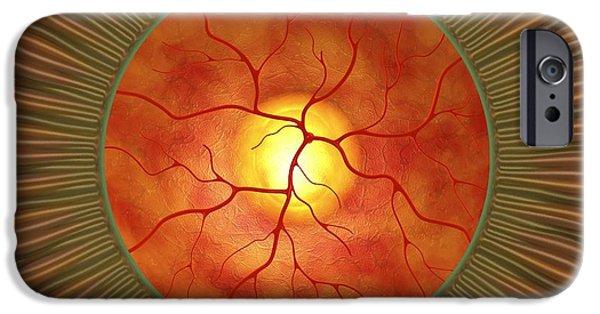 Abnormal iPhone Cases - Retina In Glaucoma, Artwork iPhone Case by David Mack
