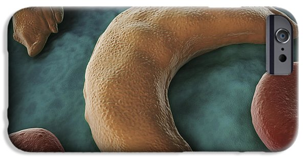 Sickness iPhone Cases - Sickle-cell Disease iPhone Case by Science Picture Co