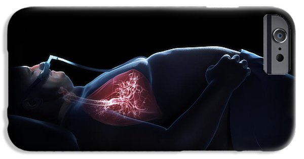 Recently Sold -  - Apnea iPhone Cases - Sleep Apnea iPhone Case by Science Picture Co
