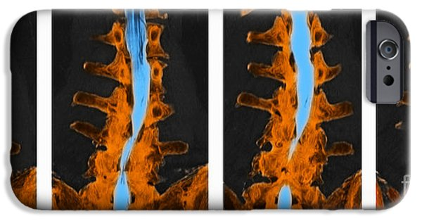 Disc iPhone Cases - Spine, Ct Scan iPhone Case by Scott Camazine
