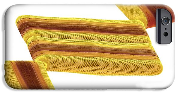 Alga iPhone Cases - Tabellaria Diatoms, Sem iPhone Case by Steve Gschmeissner