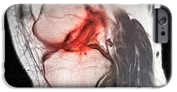 Torn iPhone Cases - Anterior Cruciate Ligament Tear, Ct Scan iPhone Case by Du Cane Medical Imaging Ltd.