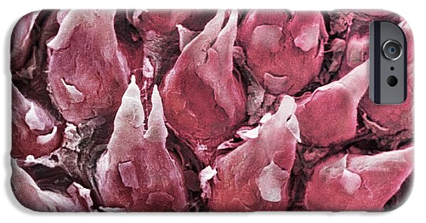 Shed iPhone Cases - Human Tongue Surface, Sem iPhone Case by Spl