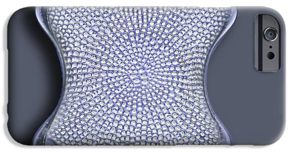 Striae iPhone Cases - Diatom, Light Micrograph iPhone Case by Frank Fox