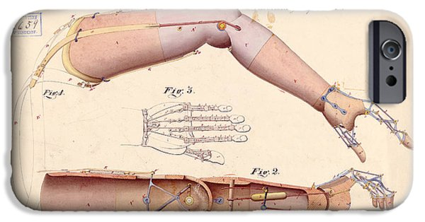 Lincoln Drawings iPhone Cases - 1865 Artificial Limbs Patent Drawing iPhone Case by Jon Neidert
