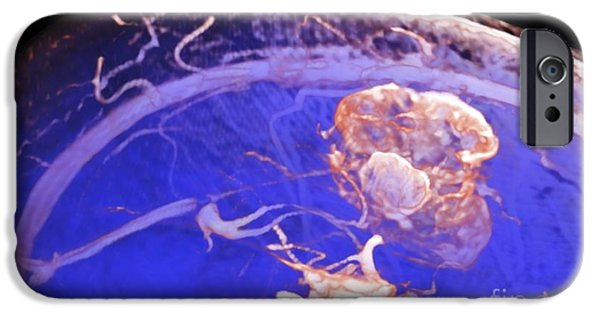 3-d iPhone Cases - Brain Tumor, 3-d Mri Scan iPhone Case by Pasieka