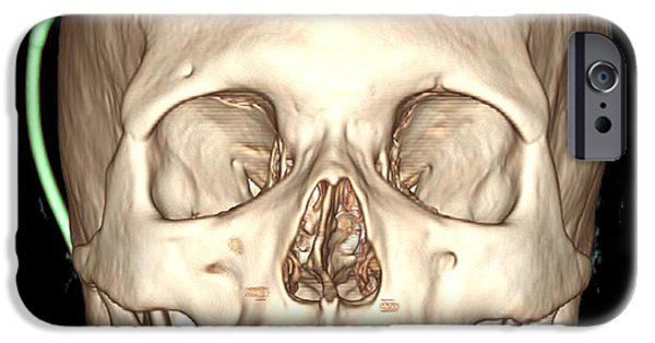 Reconstruction iPhone Cases - Enhanced 3d Ct Reconstruction iPhone Case by Living Art Enterprises, LLC