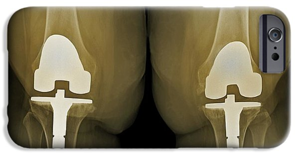 Total Knee Replacement iPhone Cases - Prosthetic Knees And Obesity, X-ray iPhone Case by Zephyr
