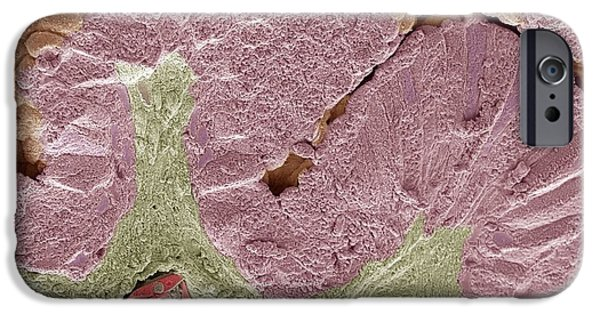 Mucosa iPhone Cases - Snake Intestine, Sem iPhone Case by Steve Gschmeissner