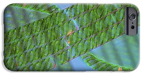 Alga iPhone Cases - Spirogyra Algae, Light Micrograph iPhone Case by Marek Mis