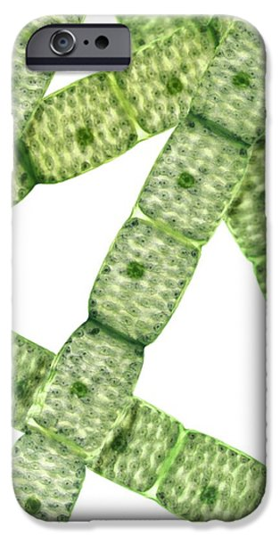 Alga iPhone Cases - Spirogyra Algae, Light Micrograph iPhone Case by Steve Gschmeissner