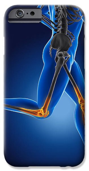 3D running medical man iPhone Case by Kirsty Pargeter
