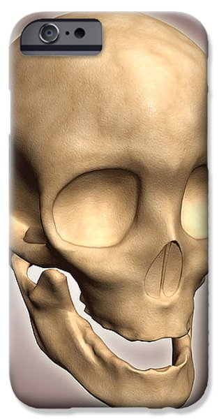 Conceptual Image Of Human Skull iPhone Case by Stocktrek Images