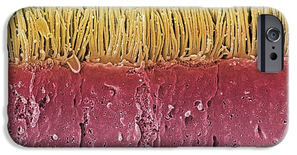 Microvillus iPhone Cases - Intestinal Microvilli, Sem iPhone Case by Steve Gschmeissner