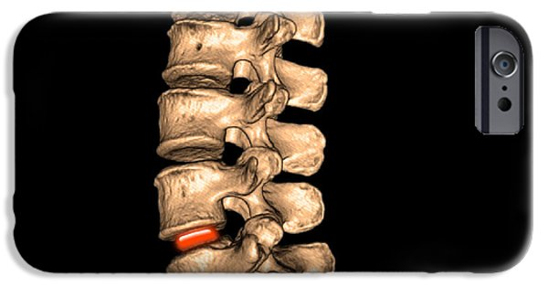 Disc iPhone Cases - Lumbar Spine iPhone Case by Living Art Enterprises, LLC