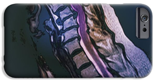 Abnormal iPhone Cases - Slipped Disc, Mri Scan iPhone Case by Zephyr