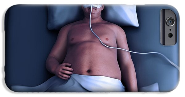 Apnea iPhone Cases - Sleep Apnea iPhone Case by Science Picture Co