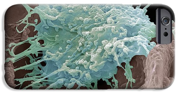 Abnormal iPhone Cases - Cervical Cancer Cell, Sem iPhone Case by Steve Gschmeissner