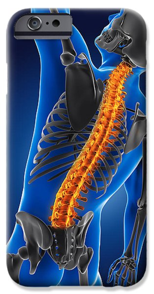 3D medical man with skeleton iPhone Case by Kirsty Pargeter