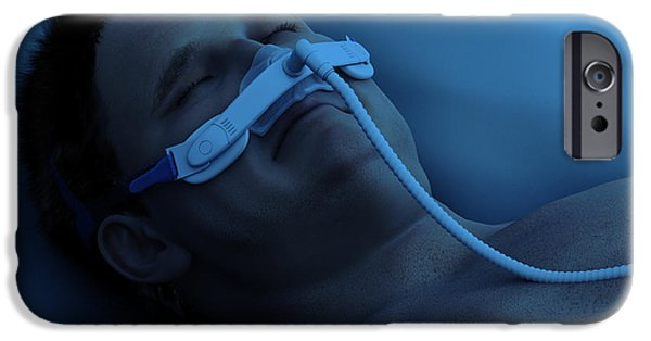 Disorder iPhone Cases - Sleep Apnea iPhone Case by Science Picture Co