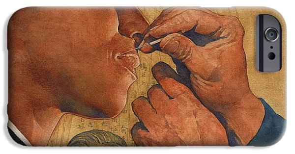 Medicine Paintings iPhone Cases - Acupuncture in China iPhone Case by Greg Harlin