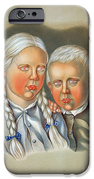 Disorder iPhone Cases - Albino Children 19th Century iPhone Case by Science Source