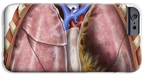 Disorder Digital iPhone Cases - Artist Depiction Of Mesothelioma iPhone Case by Alan Gesek