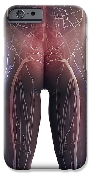Sacral Plexus iPhone Cases - Back Pain Sciatica iPhone Case by Science Picture Co