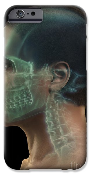 Frontal Bones iPhone Cases - Bones Of The Head iPhone Case by Science Picture Co