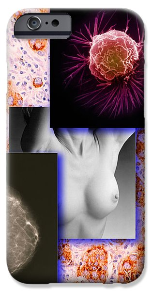 Malignant iPhone Cases - Breast Cancer Montage iPhone Case by Scott Camazine