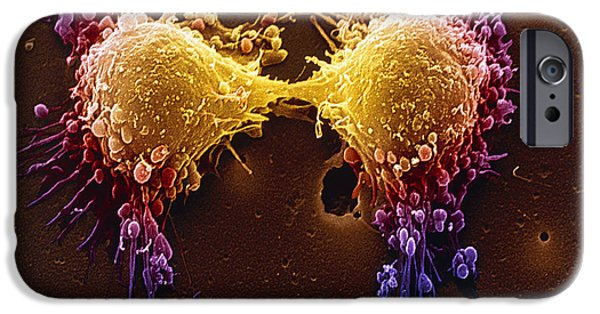 Condition iPhone Cases - Cancer Cell Division iPhone Case by SPL and Photo Researchers