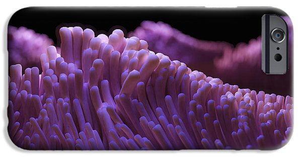 Magnification iPhone Cases - Cilia Of The Respiratory Tract iPhone Case by Science Picture Co