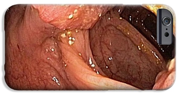 Endoscopy iPhone Cases - Colon Cancer, Endoscopic View iPhone Case by Gastrolab