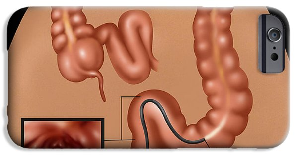 Sigmoid Colon iPhone Cases - Colonoscopy iPhone Case by Gwen Shockey