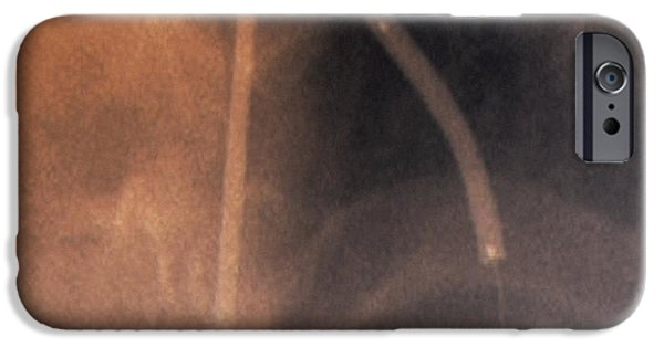 Technology iPhone Cases - Coronary Stenosis Treatment, X-ray iPhone Case by Zephyr