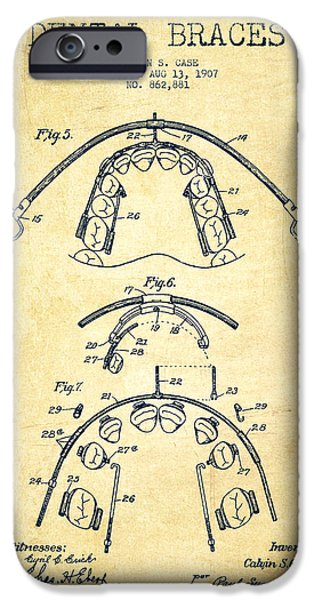 Device iPhone Cases - Dental braces Patent From 1907 - Vintage iPhone Case by Aged Pixel