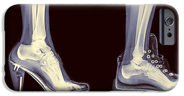 Ballet Dancers iPhone Cases - Different Shoes X-ray  iPhone Case by Guy Viner