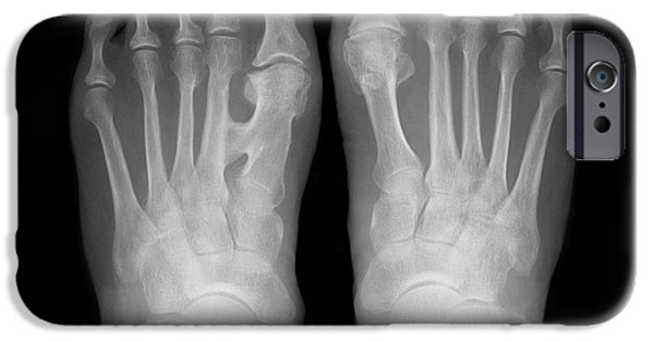 Disorder iPhone Cases - Fused Metatarsals, X-ray iPhone Case by Science Photo Library