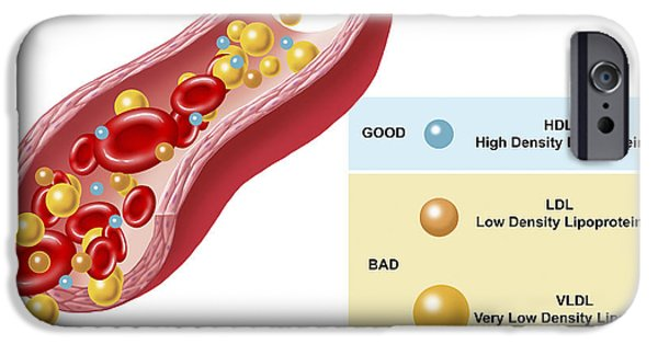 Disorder Digital iPhone Cases - Good And Bad Cholesterol Found In Blood iPhone Case by TriFocal Communications
