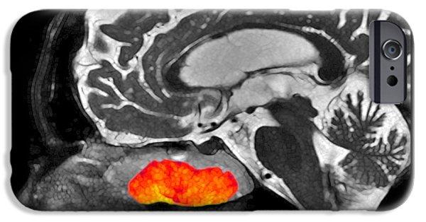 Mucosa iPhone Cases - Inverted Papilloma, Mri iPhone Case by Living Art Enterprises